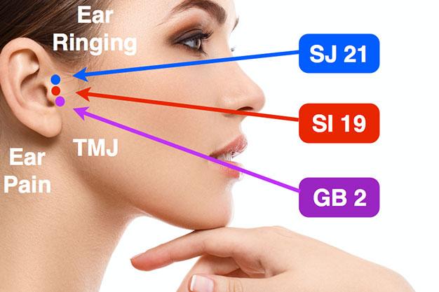 نقاط فشار موثر برای سردرد