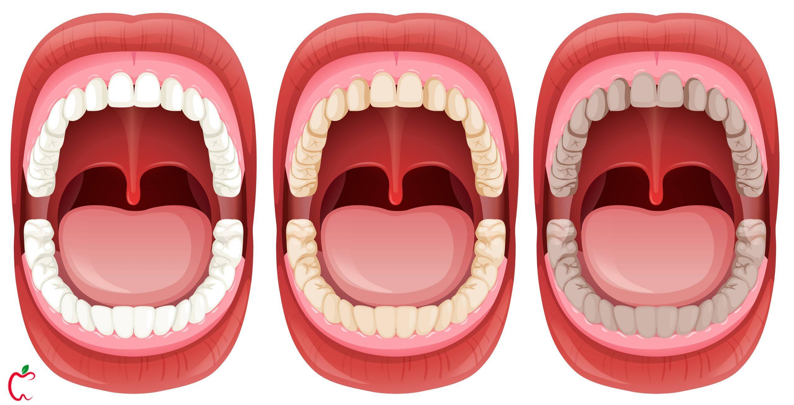 لکه های سياه دندان | سیوطب