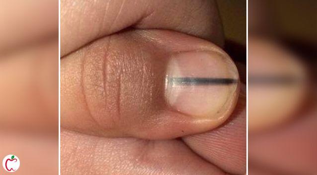 ناخن |  بیماری های ناخن| خطوط سیاه روی ناخن