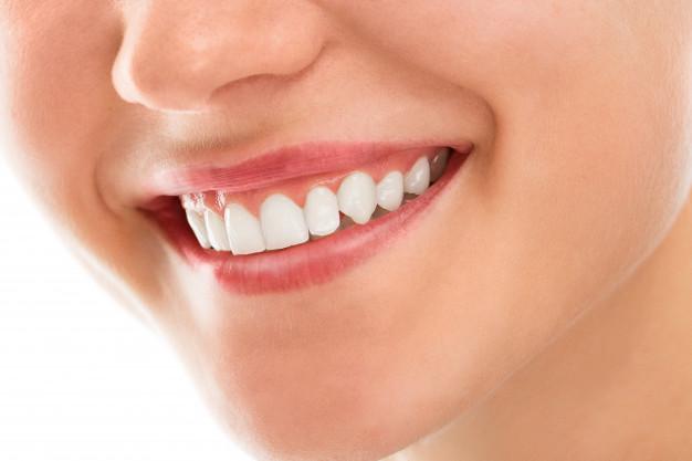 علت لکه هاي سياه دندان