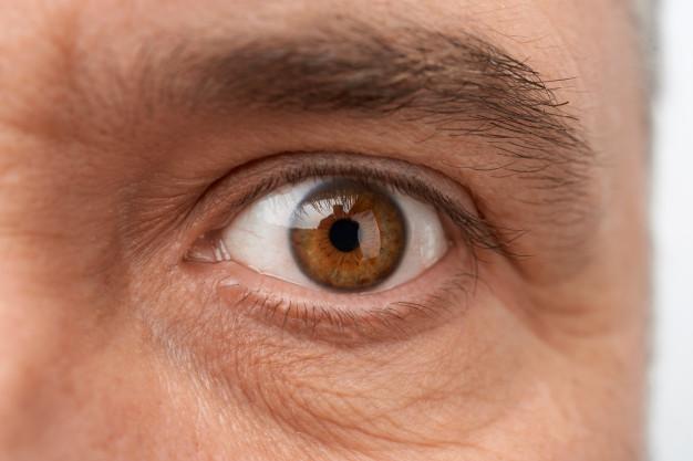 جلوگیری از خطوط ریز زیر چشم