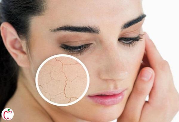 خشکی پوست از عوارض آرایش کردن - سیوطب