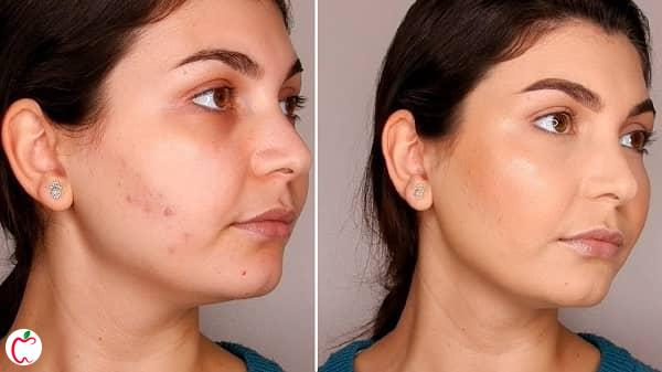 عوارض آرایش کردن جوش صورت - سیوطب