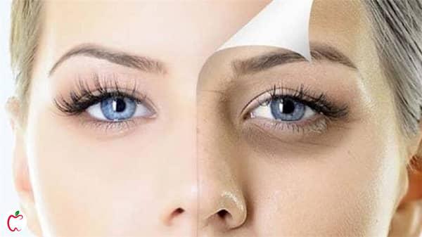 عوارض آرایش کردن خانم ها - سیوطب