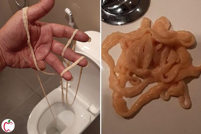 کرم نواری روده که در دستشویی از بدن د�ع شده  | سیوطب