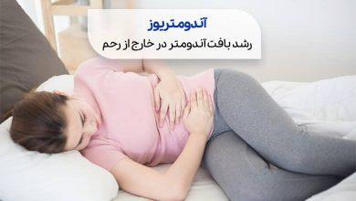 آندومتریوز سیو طب