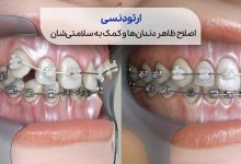 نمای گرافیکی از دندان ها قبل و بعد از ارتودنسی سیوطب