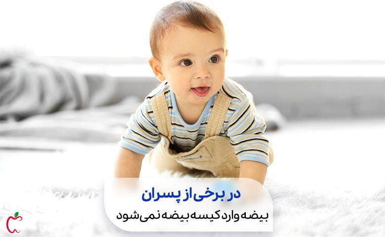 بیضههای نزول نکرده حدود 3درصد از کل پسران را درگیر میکند سیوطب