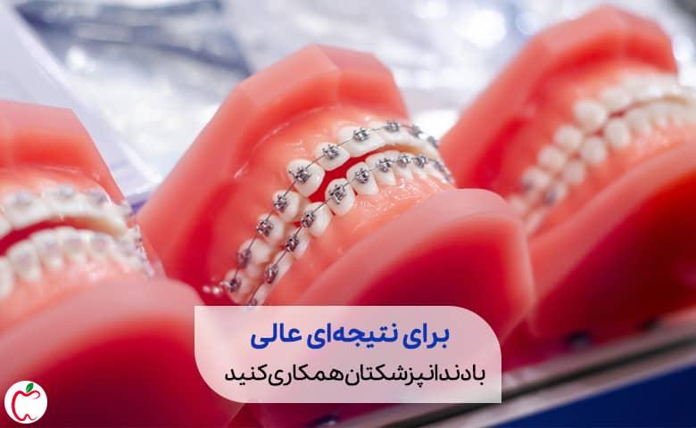 یک مدل مصنوعی از دندان های انسان سیوطب