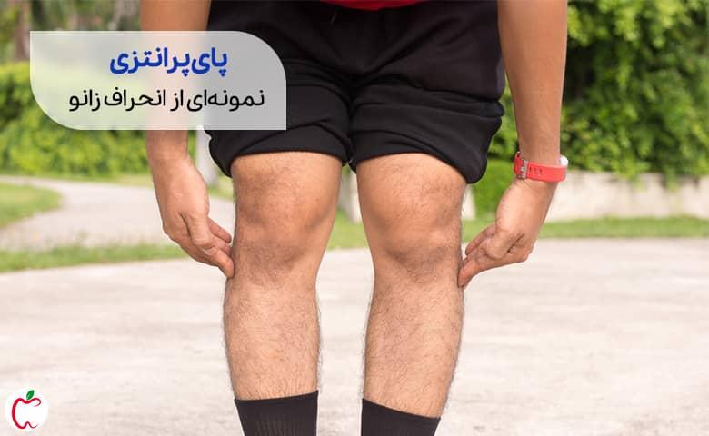 فردی با پای پرانتزی   علت زانو درد سیوطب