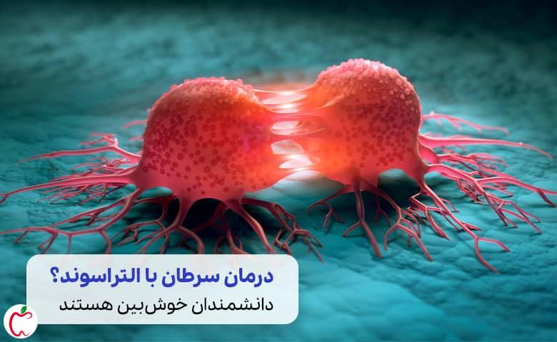 یک تومور سرطانی سیوطب
