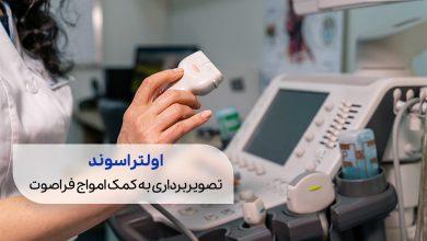 یک دستگاه سونوگرافی یا اولتراسوند در بارداری | سیوطب