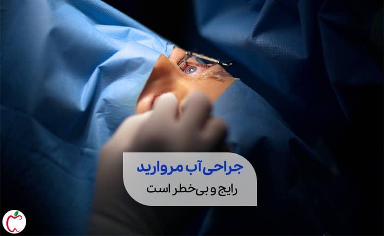 پزشک در حال جراحی آب مروارید سیوطب