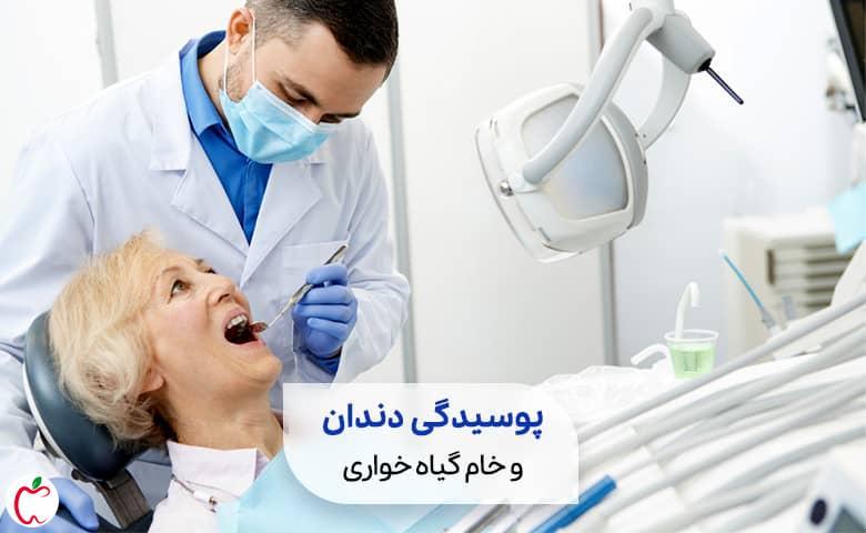 یک فرد معتقد به خام گیاه خواری روی یونیت دندانپزشکی|سیوطب