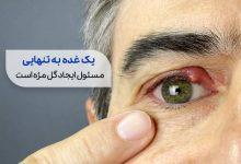 چشم مبتلا به گل مژه|سیوطب