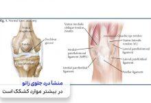 کشکک زانو که باعث مشکل درد جلوی زانو می شود|سیوطب
