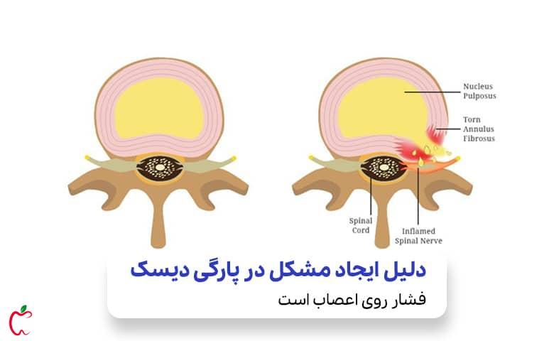 عصب تحت فشار در اثر پارگی دیسک کمر|سیوطب